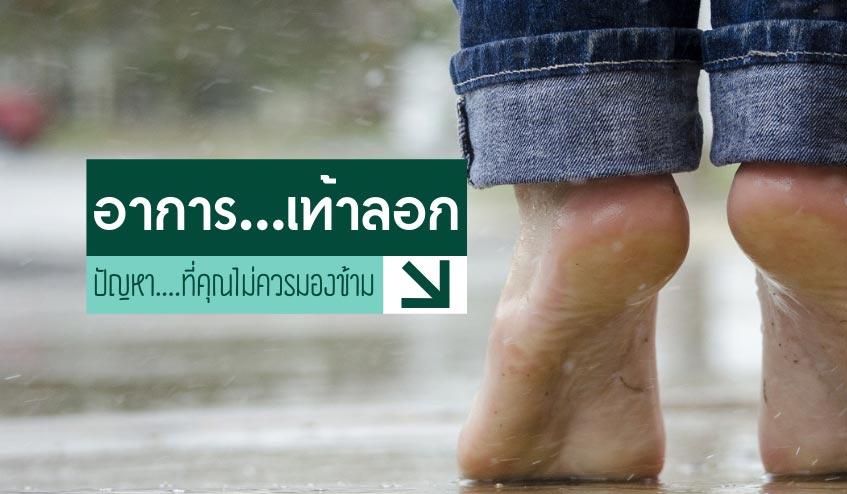เท้าลอก…ปัญหาที่ไม่ควรมองข้าม !