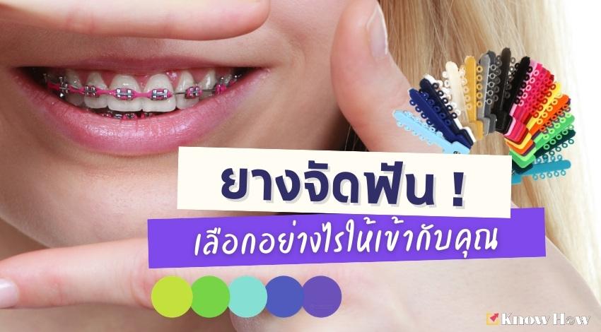 ยางจัดฟัน ! เลือกอย่างไรให้เข้ากับคุณ