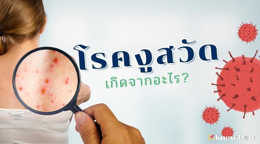 โรคงูสวัดเกิดจากอะไร?